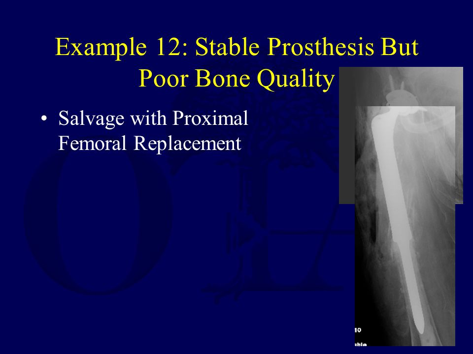 Example 12: Stable Prosthesis But Poor Bone Quality