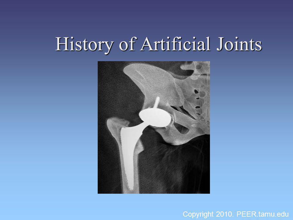 History of Artificial Joints