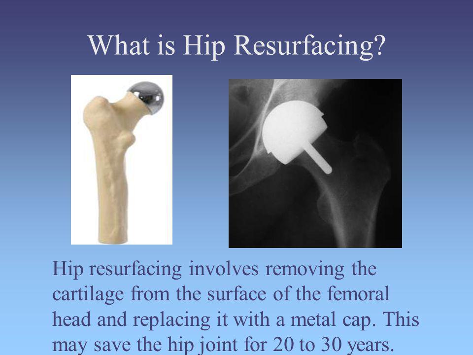 What is Hip Resurfacing