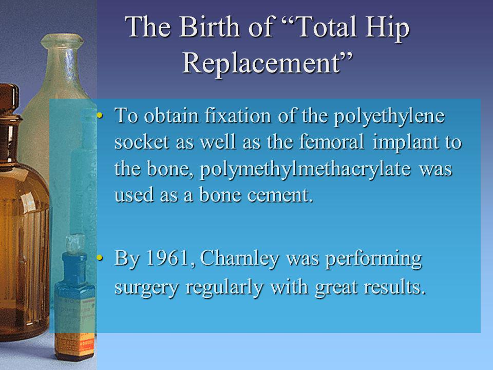 The Birth of Total Hip Replacement
