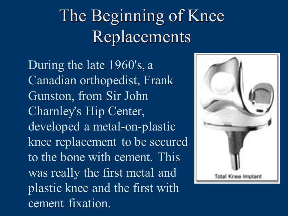 The Beginning of Knee Replacements
