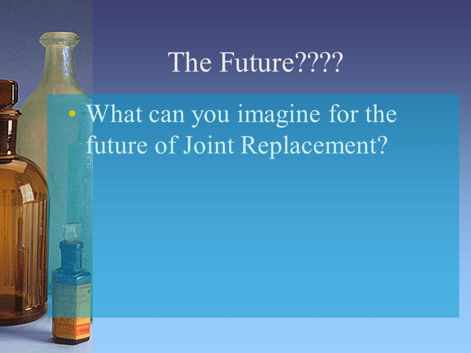 The Future What can you imagine for the future of Joint Replacement