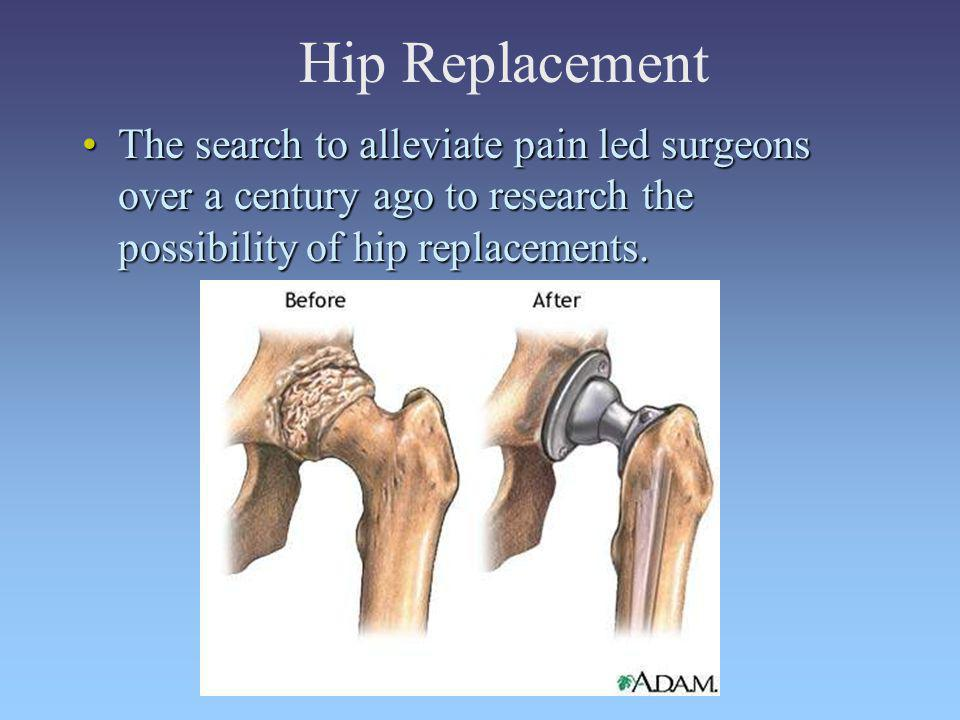 Hip Replacement The search to alleviate pain led surgeons over a century ago to research the possibility of hip replacements.