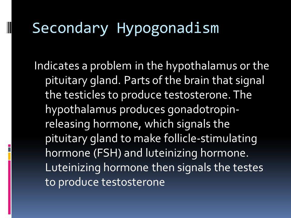 Secondary Hypogonadism