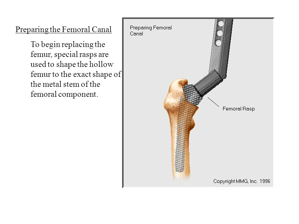 Preparing the Femoral Canal