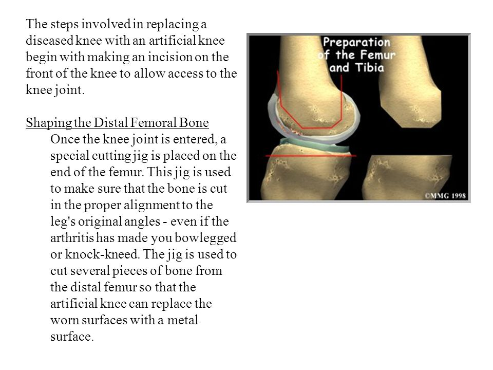 The steps involved in replacing a diseased knee with an artificial knee begin with making an incision on the front of the knee to allow access to the knee joint.