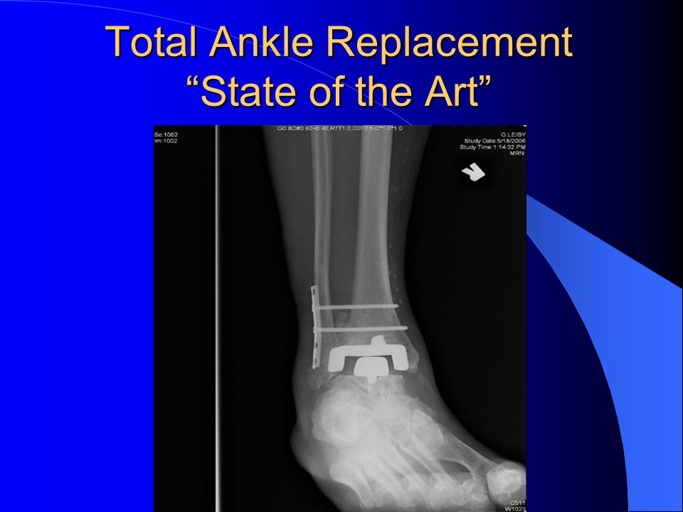 Total Ankle Replacement State of the Art