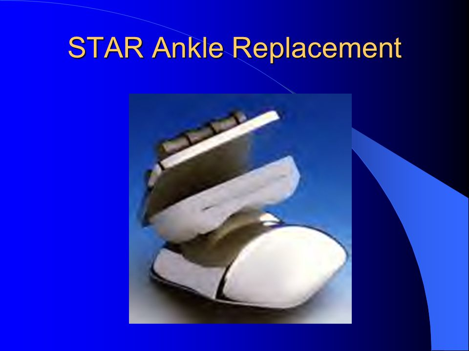 STAR Ankle Replacement
