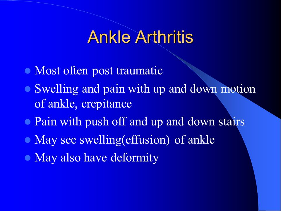 Ankle Arthritis Most often post traumatic