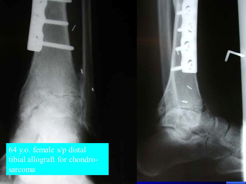 64 y.o. female s/p distal tibial allograft for chondro- sarcoma