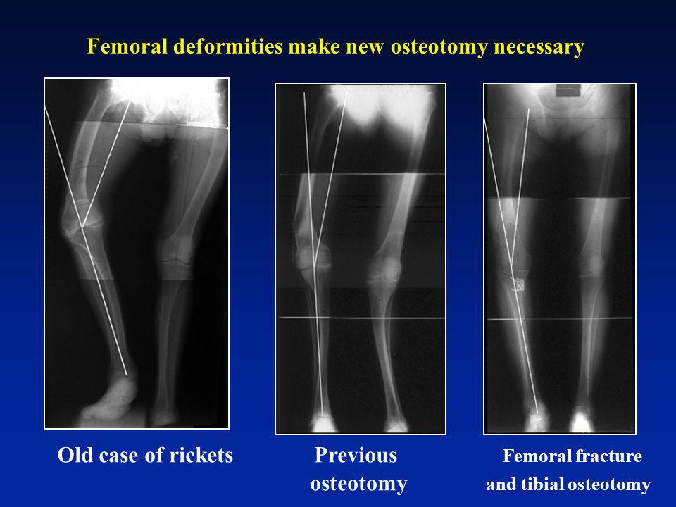 Femoral deformities make new osteotomy necessary