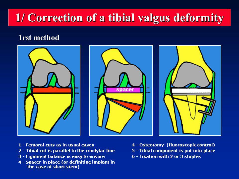 1/ Correction of a tibial valgus deformity