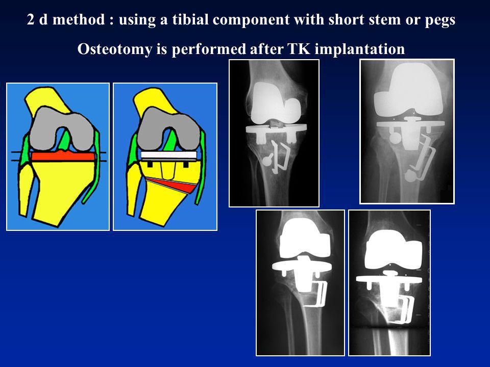 2 d method : using a tibial component with short stem or pegs