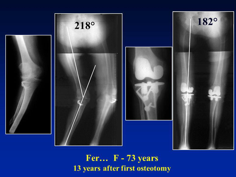 Fer… F - 73 years 13 years after first osteotomy