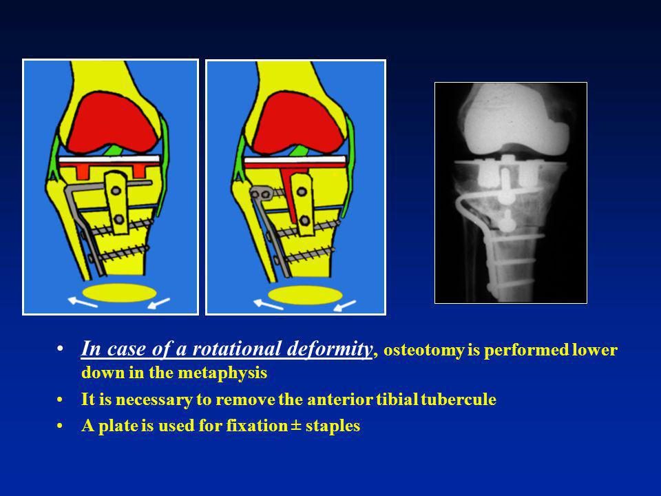 In case of a rotational deformity, osteotomy is performed lower down in the metaphysis