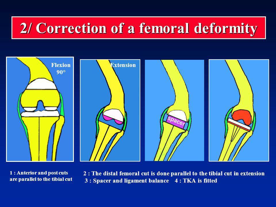 2/ Correction of a femoral deformity