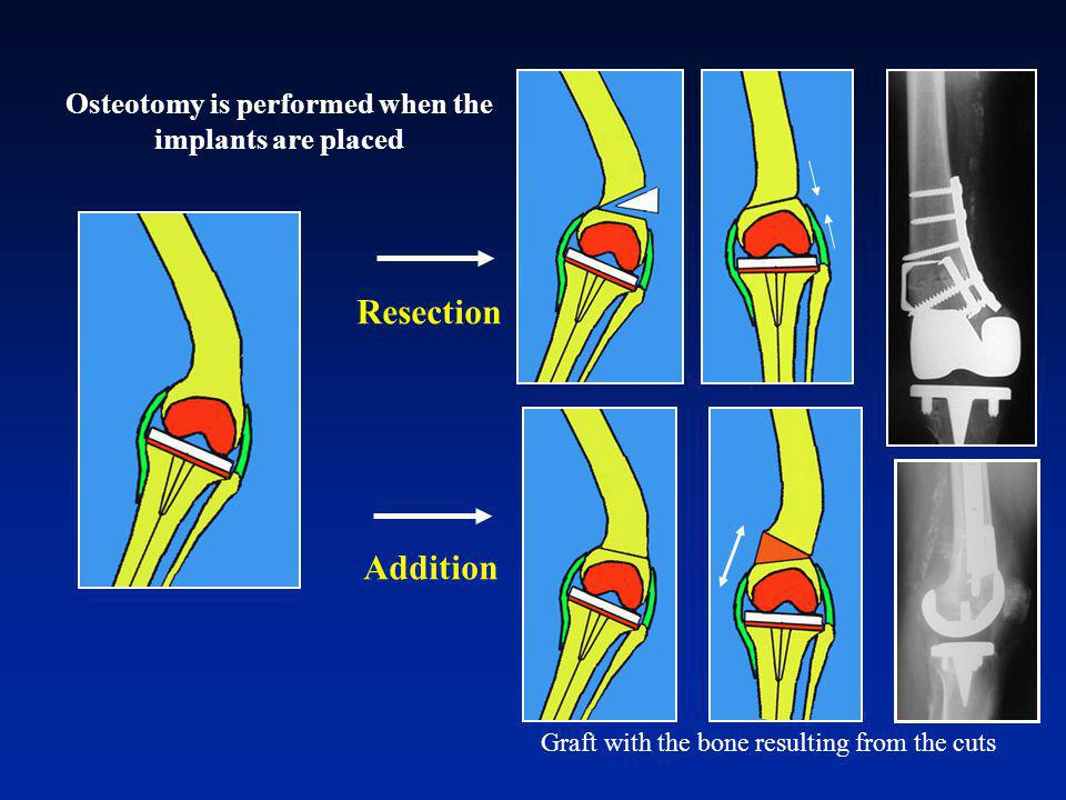 Osteotomy is performed when the implants are placed