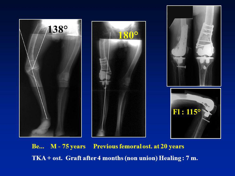 138° 180° Fl : 115° Be... M - 75 years Previous femoral ost.