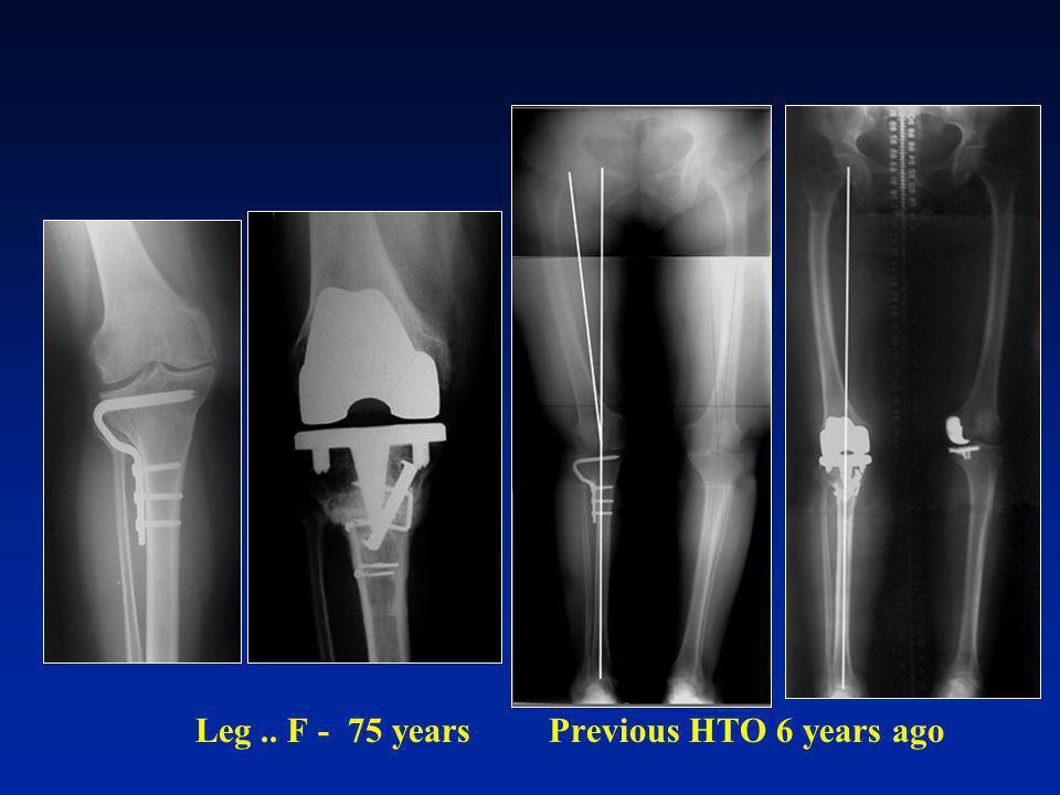 Leg .. F - 75 years Previous HTO 6 years ago