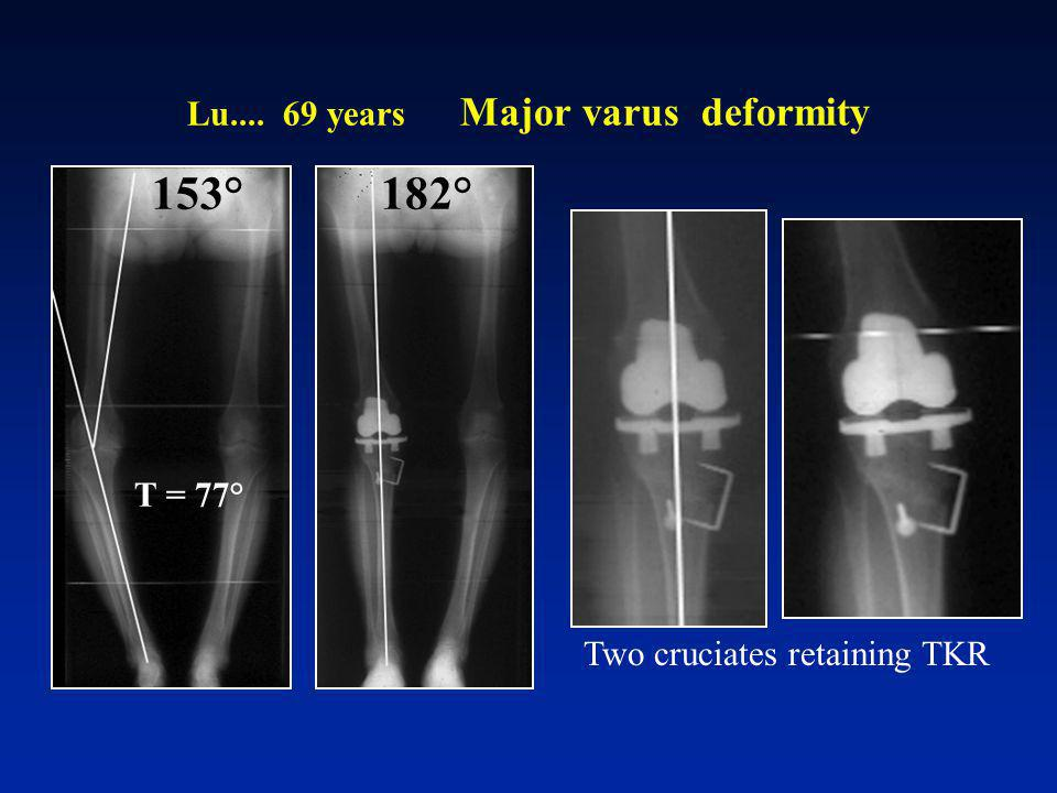 Lu years Major varus deformity
