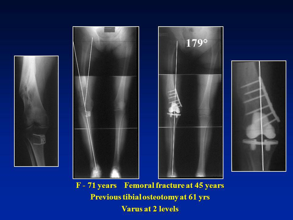 179° F - 71 years Femoral fracture at 45 years