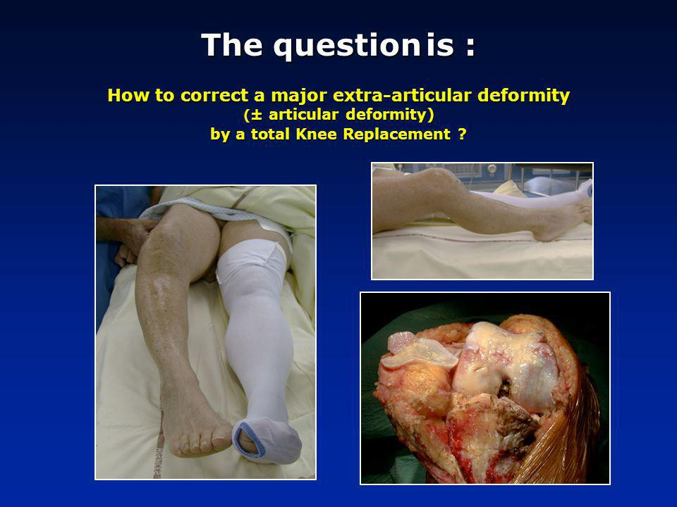 The question is : How to correct a major extra-articular deformity (± articular deformity) by a total Knee Replacement
