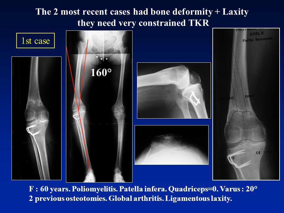 The 2 most recent cases had bone deformity + Laxity they need very constrained TKR