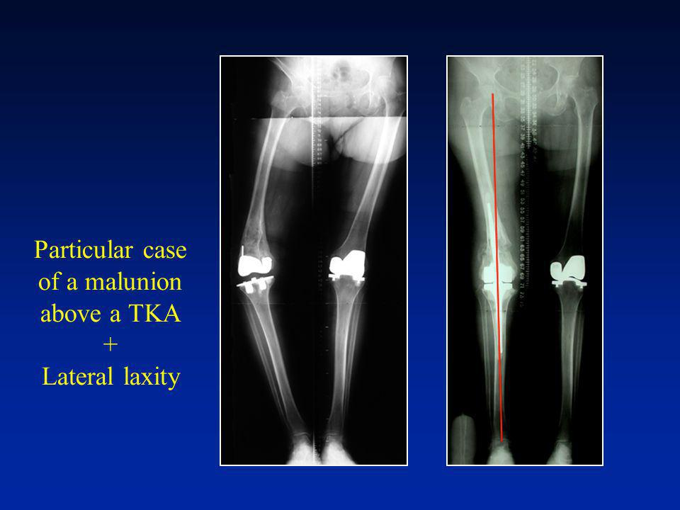 Particular case of a malunion above a TKA + Lateral laxity