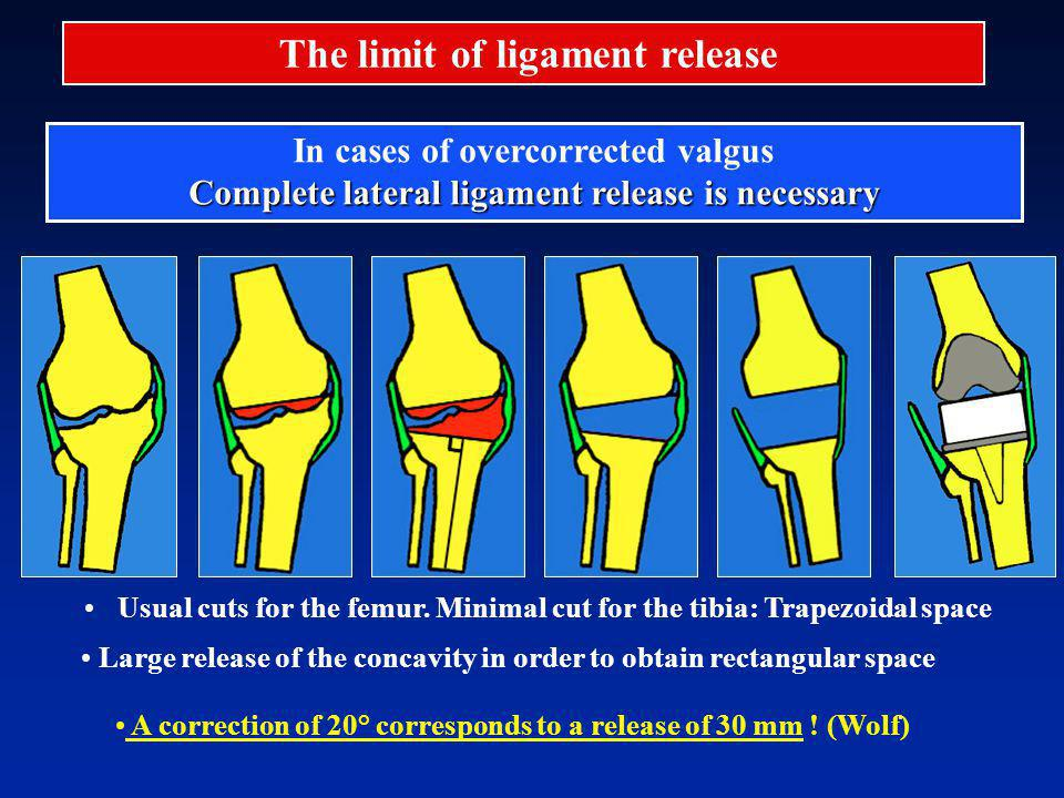 The limit of ligament release