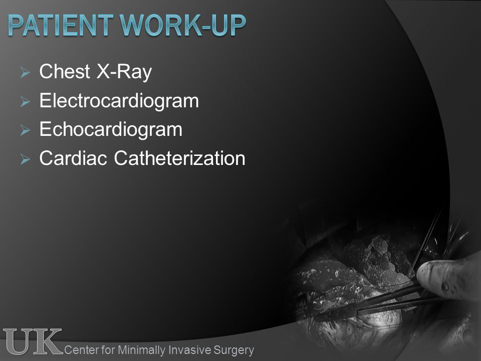 Patient work-up Chest X-Ray Electrocardiogram Echocardiogram