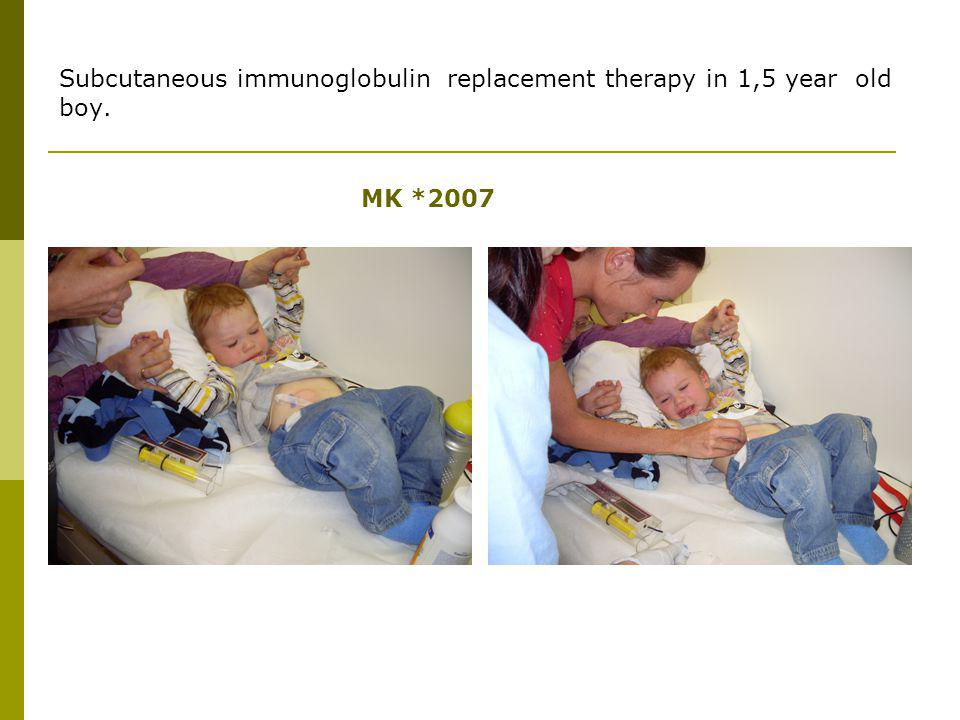 Subcutaneous immunoglobulin replacement therapy in 1,5 year old boy.