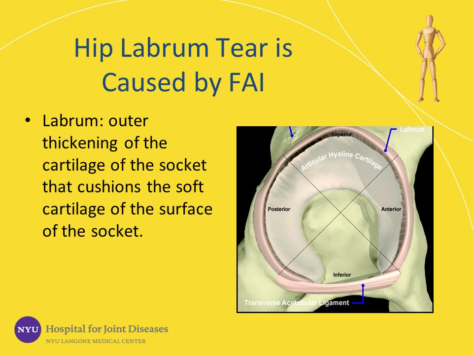 Hip Labrum Tear is Caused by FAI