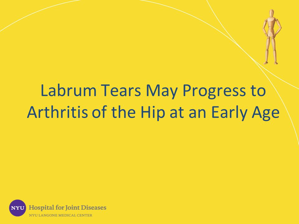 Labrum Tears May Progress to Arthritis of the Hip at an Early Age
