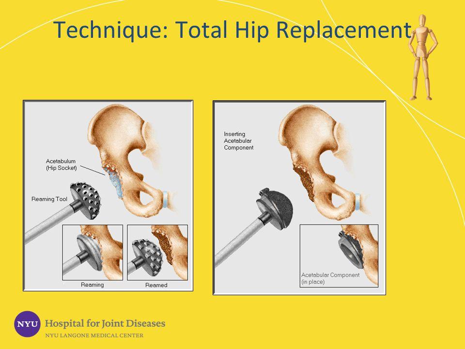 Technique: Total Hip Replacement