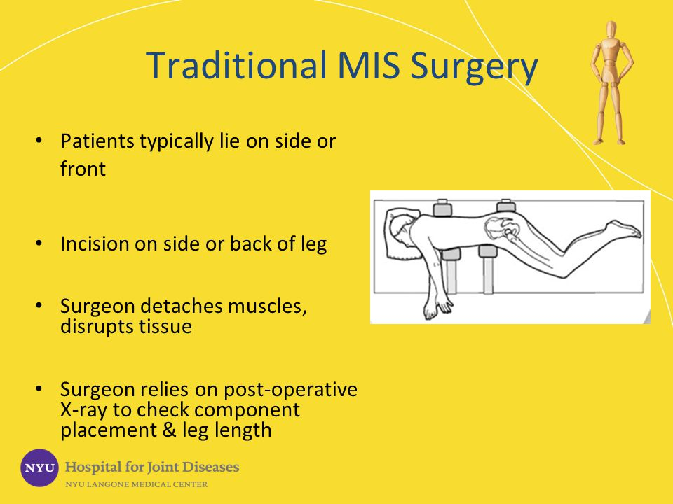 Traditional MIS Surgery