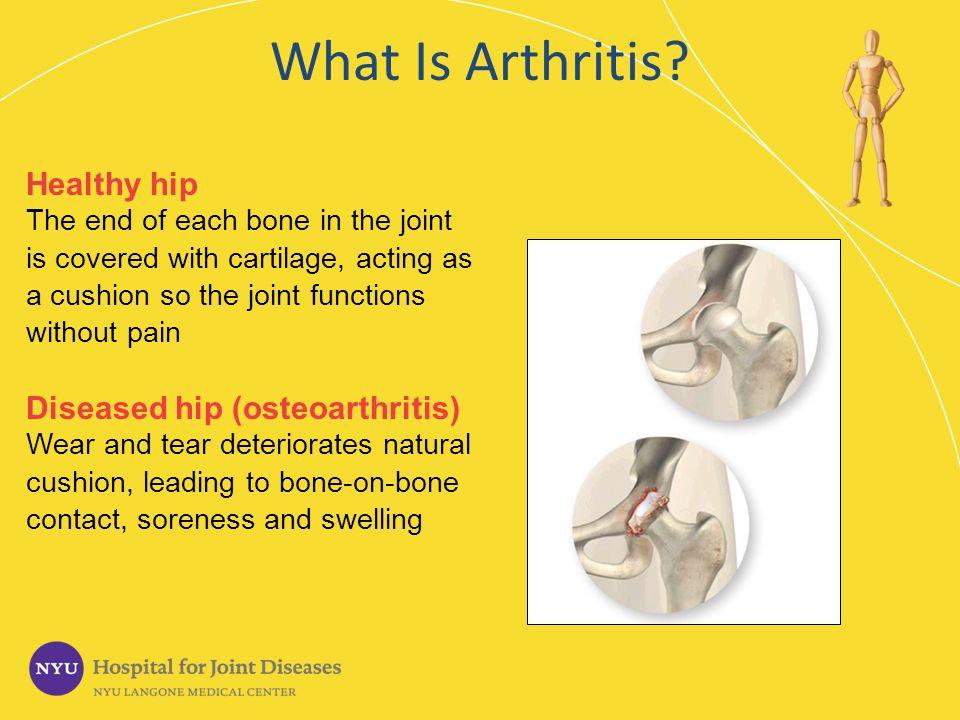 What Is Arthritis Healthy hip Diseased hip (osteoarthritis)