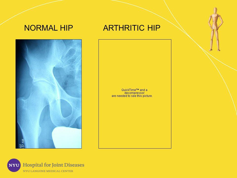 NORMAL HIP ARTHRITIC HIP