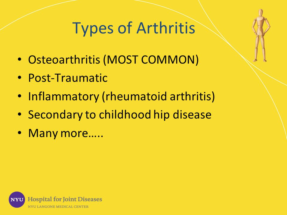 ARTHRITIS OF THE HIP Roy I Davidovitch, MD - ppt download