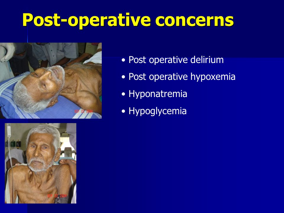 Post-operative concerns