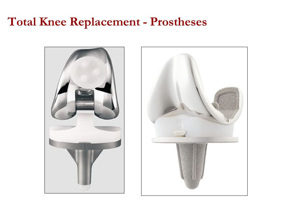 Total Knee Replacement - Prostheses
