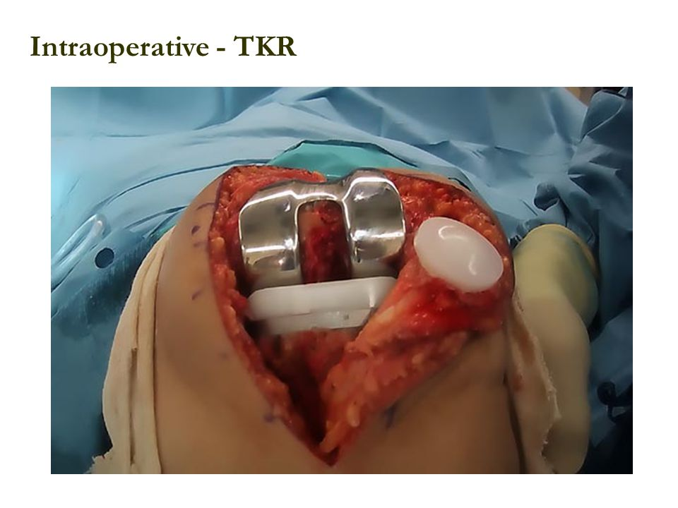 Intraoperative - TKR