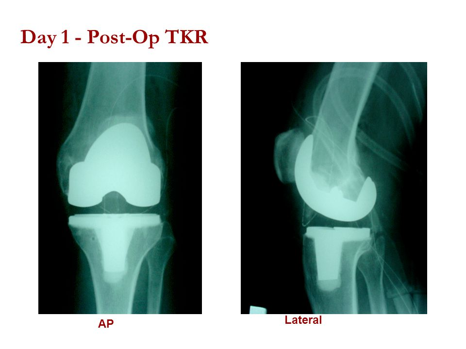 Day 1 - Post-Op TKR Lateral AP