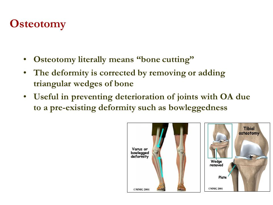 Osteotomy Osteotomy literally means bone cutting
