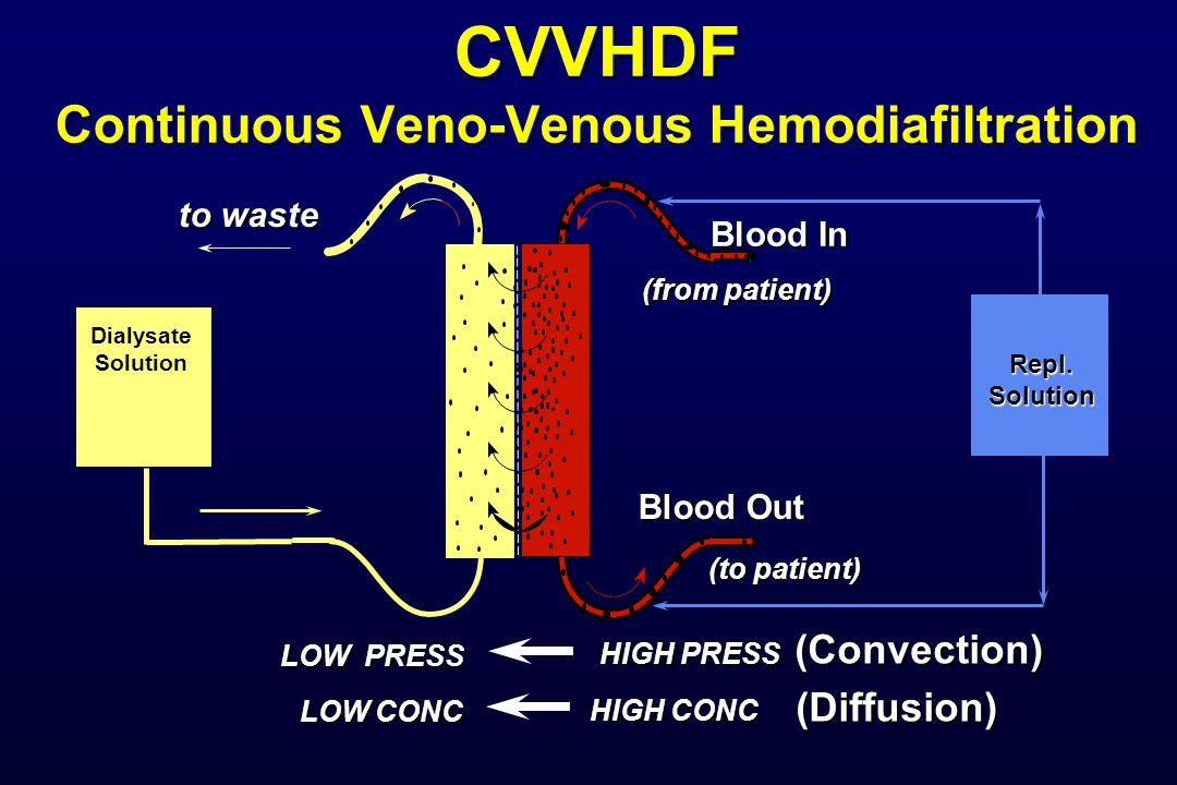 CVVHDF Continuous Veno-Venous Hemodiafiltration