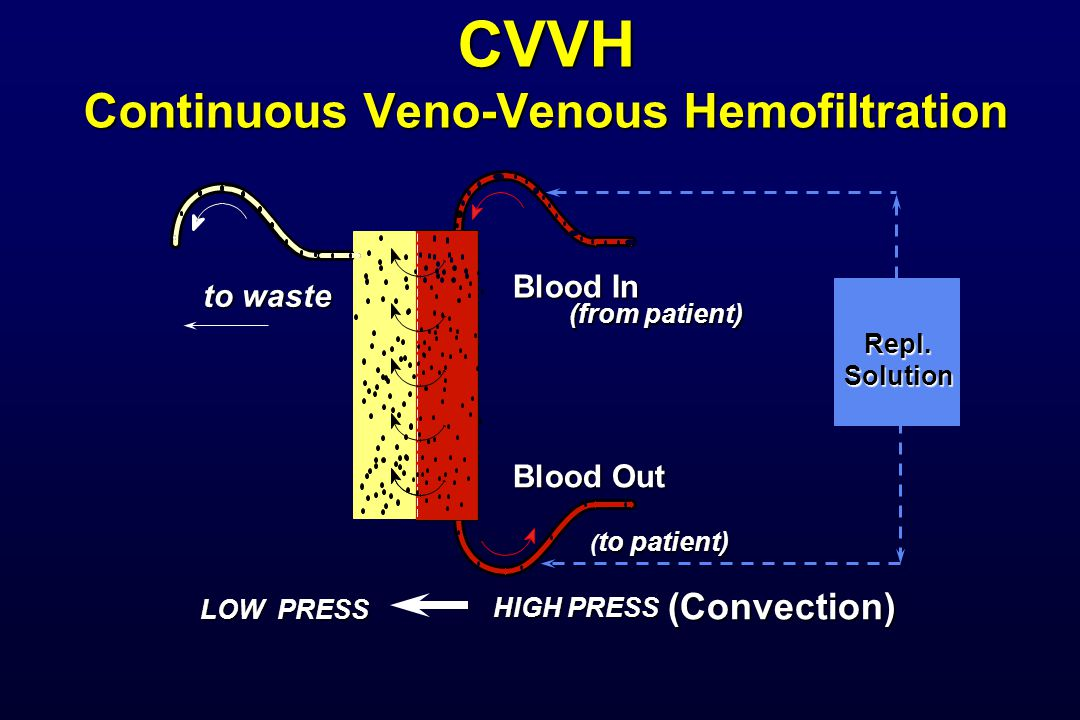 CVVH Continuous Veno-Venous Hemofiltration