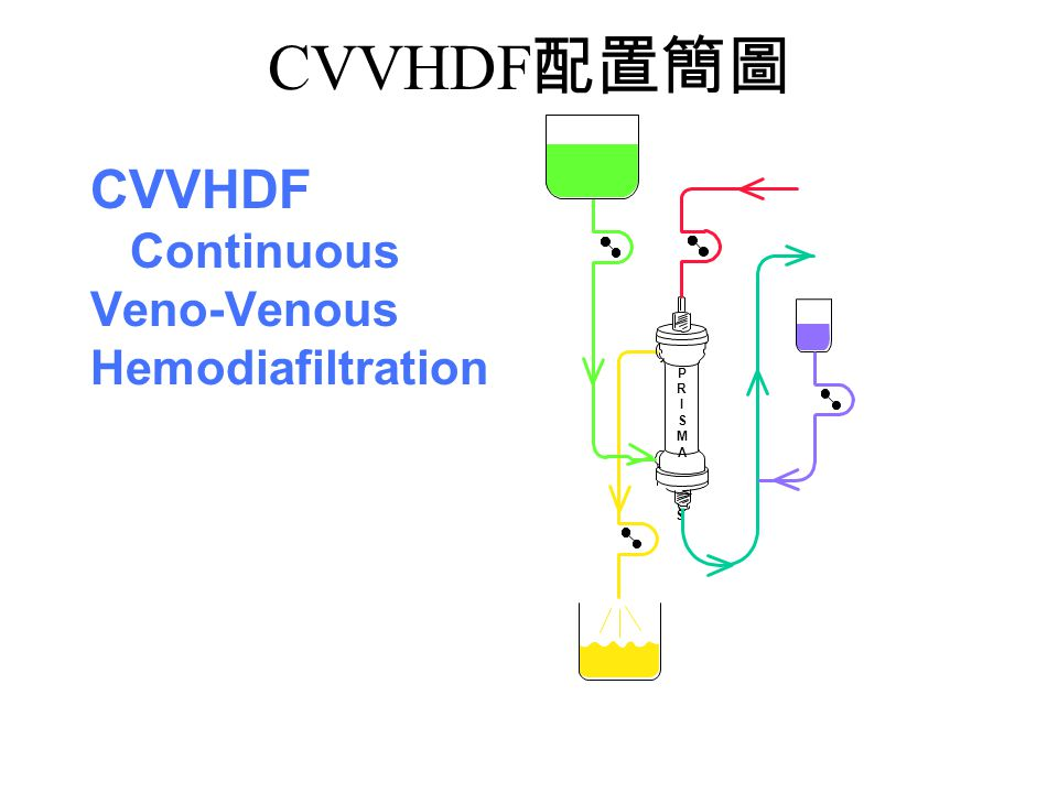CVVHDF配置簡圖 P R I S M A CVVHDF Continuous Veno-Venous Hemodiafiltration