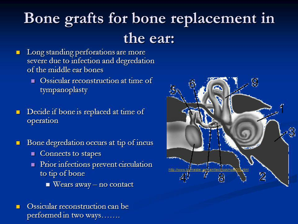 Bone grafts for bone replacement in the ear: