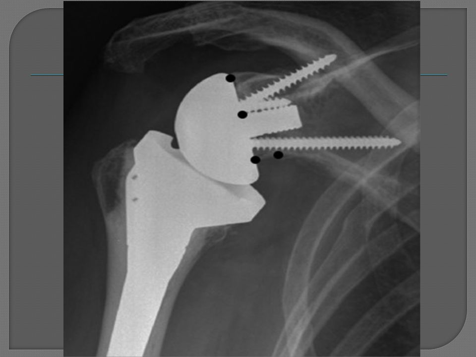 Can anyone identify the type of prosthesis seen in this radiograph