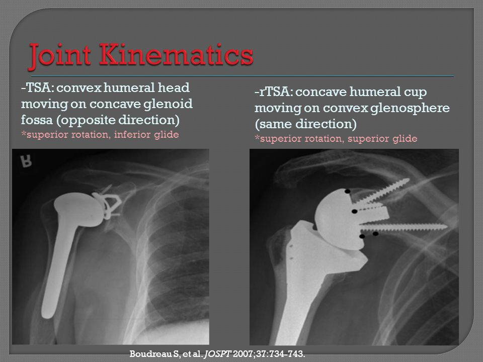 Joint Kinematics -TSA: convex humeral head moving on concave glenoid fossa (opposite direction) *superior rotation, inferior glide.