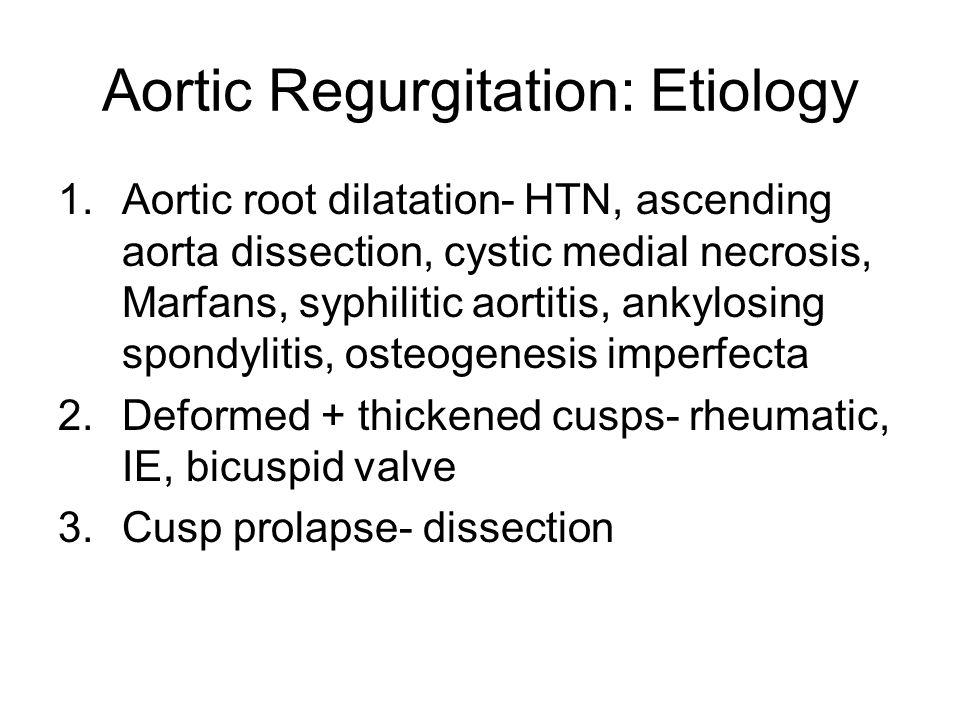 Aortic Regurgitation: Etiology